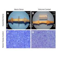 Nowoczesny sensor mający umożliwić protezom dłoni odczuć dotyk