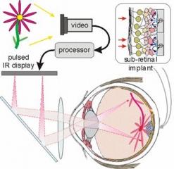 Nowe implanty siatk�wkowe dzia�aj� niczym panele s�oneczne