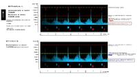 Dobór konfiguracji i wzmacniacza do głośników 18PS100.