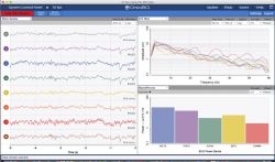 HackEEG - shield do Arduino do pomiaru EEG i EKG