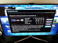 Brak połączenia sieciowego z telewizorem.