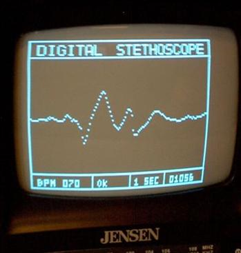 Cyfrowy stetoskop z prezentacją danych na TV