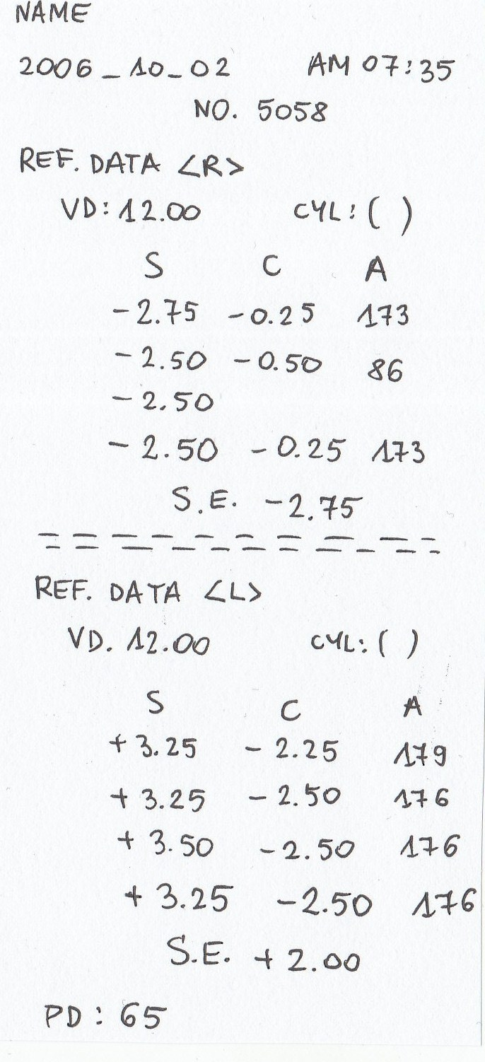 91fe395401ab82 Kilka pytań o moc soczewek przy astygmatyzmie - FORUM.optometria ...
