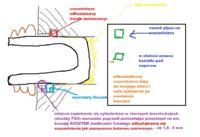 Mercedes W211 blokuj� hamulce przednie w czasie jazdy