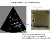 Ultrasonograf zbudowany z wykorzystaniem Raspberry Pi