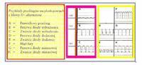 UNO 1.4 ie '93 Żarząca się kontrolka ładowania (U=13V)